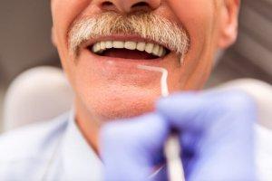 Mobile Dentist Manhattan Beach