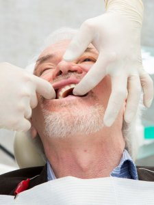 Mobile Dentist Simi Valley