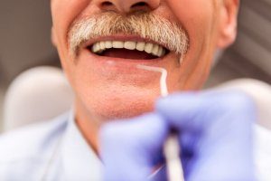 Home Care Dentist San Diego County