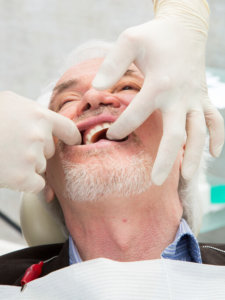 Home Care Dentist Chino Hills