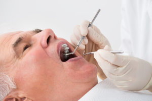 Home Dental Care for Seniors Orange County
